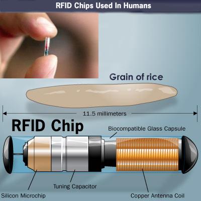 obamacare implant obamacare microchip rfid myth. Black Bedroom Furniture Sets. Home Design Ideas